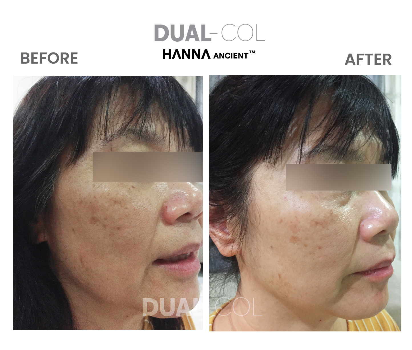 Dual Col Before After 01