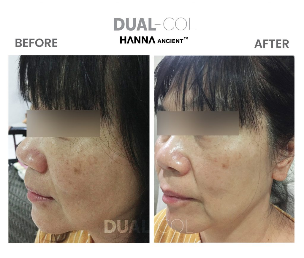 Dual Col Before After 02