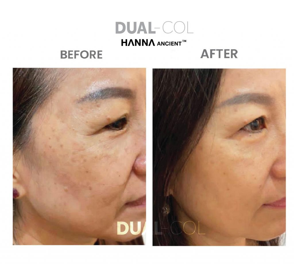 Dual Col Before After 03