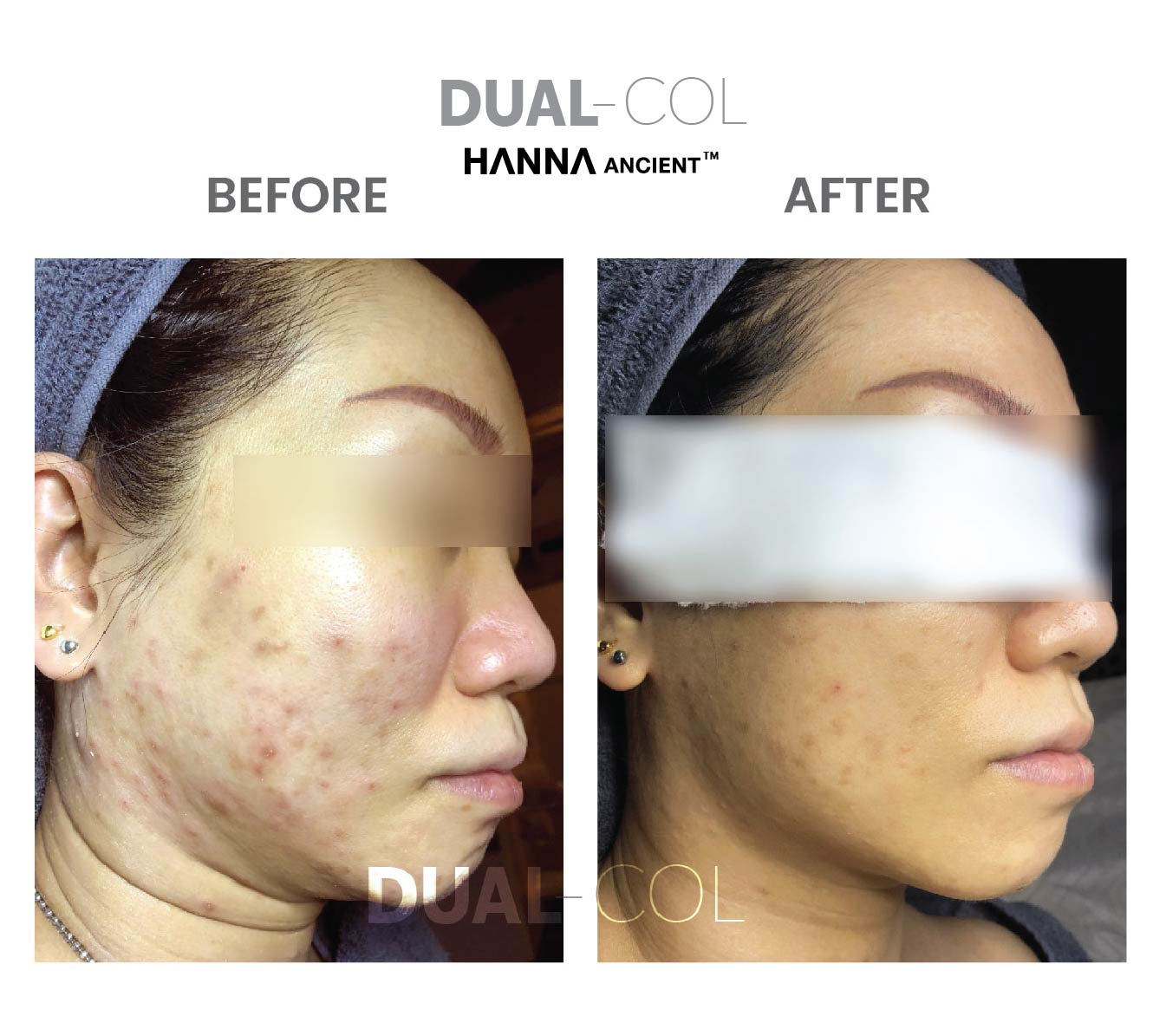 Dual Col Before After 04
