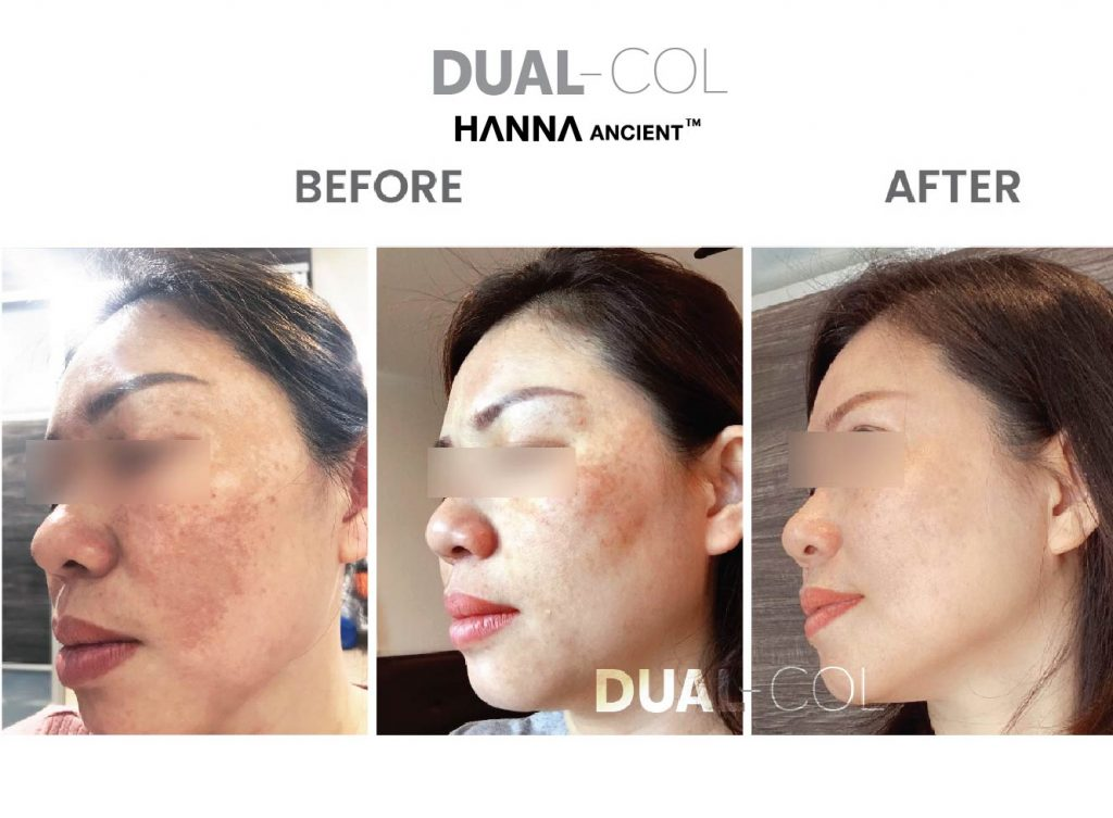 Dual Col Before After 07