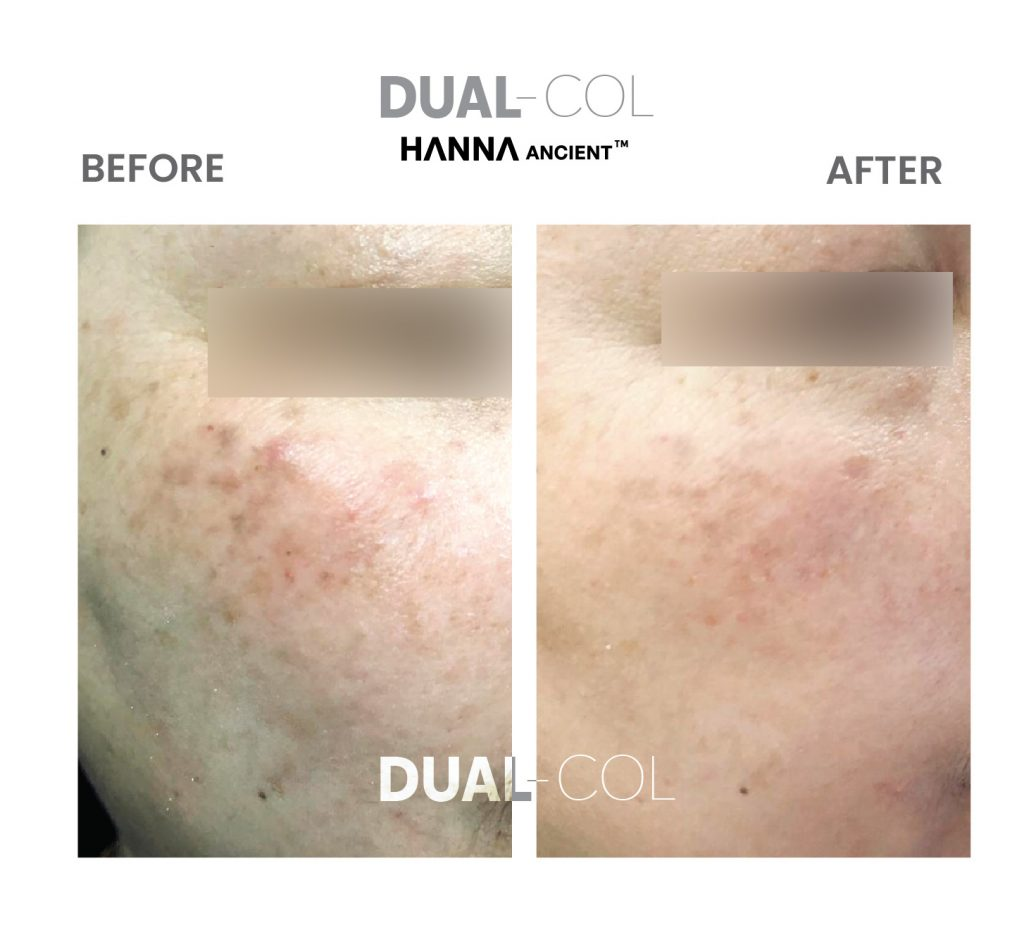 Dual Col Before After 08