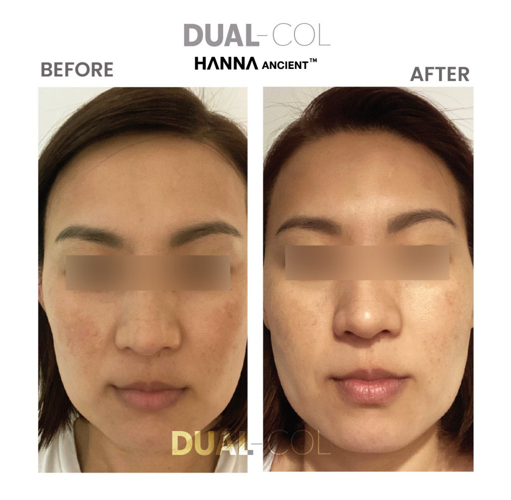 Dual Col Before After 11