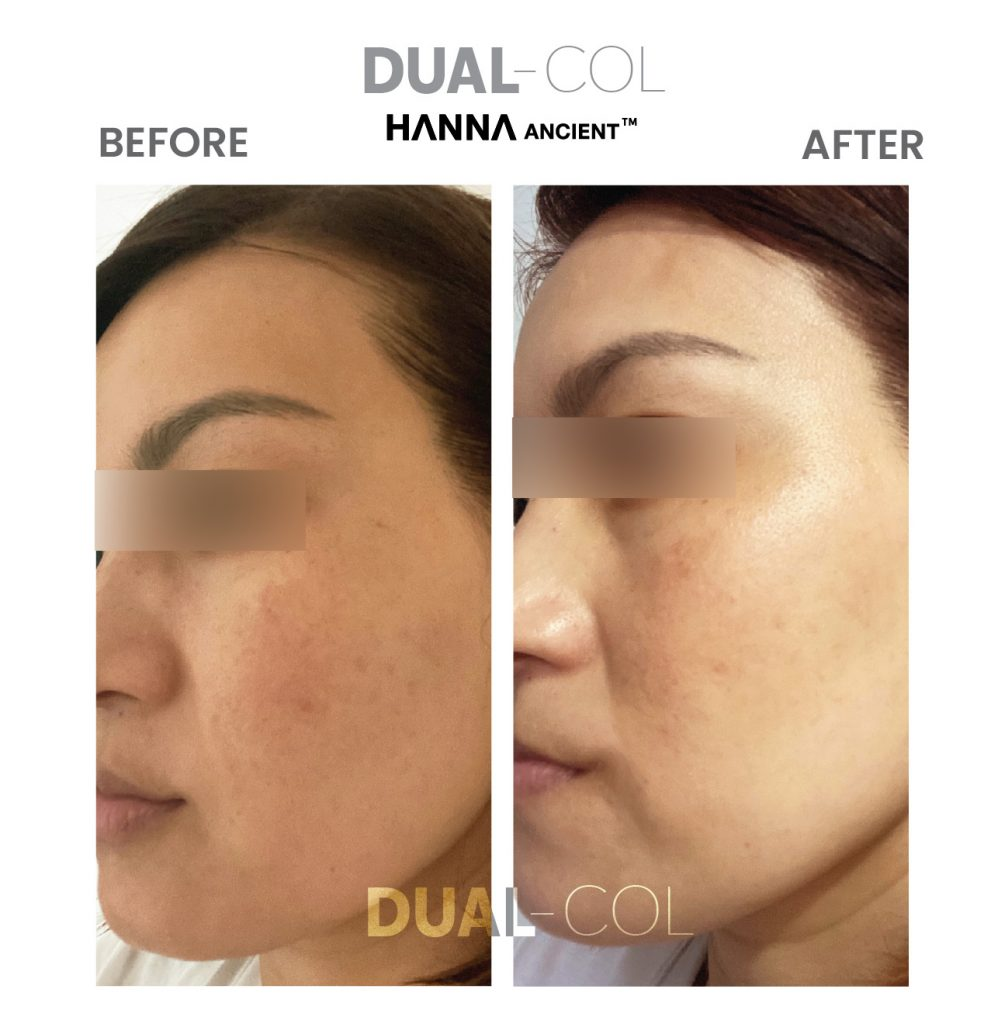 Dual Col Before After 12